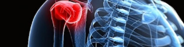 Капсуліт плечового суглоба (адгезивний, синдром замороженого плеча)