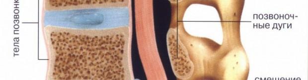 Видалення міжхребцевої грижі хірургічним шляхом