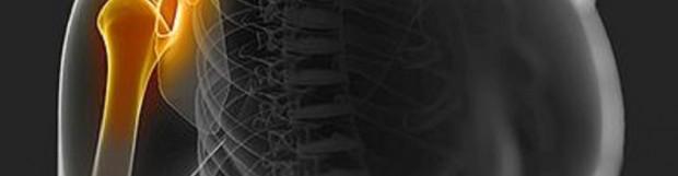 Сумки плечового суглоба