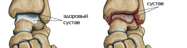 Артроз гомілковостопного суглоба