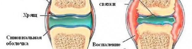 Артрит гомілковостопного суглоба