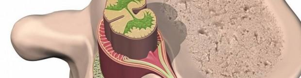 Латеральний стеноз хребта