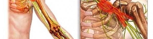 Плексит плечового суглоба